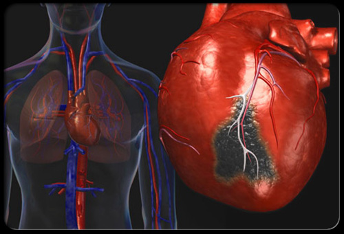 heart-disease-visual-guide-s2-heart-attack
